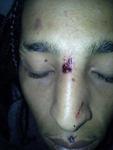 Politiegeweld in Cova da Moura (Lissabon)